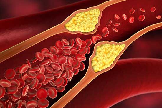 cholesterol12